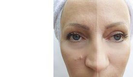 Arrugas de la cara de la mujer antes y después del tratamiento maduro de la corrección del procedimiento de la dermatología fotografía de archivo libre de regalías