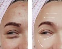 Arrugas de la muchacha de la cara antes y después de procedimientos de la regeneración de la dermatología del retiro fotos de archivo