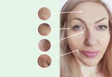 Arrugas de la mujer antes después del contraste de elevación de los procedimientos de la regeneración de la terapia de la cosmeto fotos de archivo