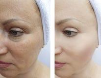 Arrugas de la mujer antes y después de la corrección de elevación de los procedimientos de la tensión de la regeneración imagenes de archivo