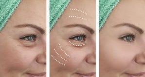 Arrugas de la mujer antes y después del problema maduro del retiro de la dermatología de la revitalización de los resultados de l foto de archivo libre de regalías