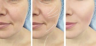 Arrugas de la mujer antes y después del problema maduro del retiro de la dermatología de la revitalización de los resultados de l fotografía de archivo libre de regalías