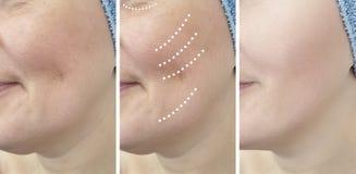 Arrugas de la mujer antes y después del problema maduro del retiro de la dermatología de la revitalización de los resultados del  fotografía de archivo libre de regalías