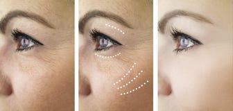 Arrugas de la mujer antes y después del problema del retiro de la dermatología de la revitalización del tratamiento fotos de archivo