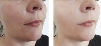 Arrugas de la mujer antes y después de que la regeneración madura tratamientos de la cosmetología del tratamiento imagen de archivo