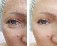 arrugas de la mujer antes y después de tratamientos del contraste fotografía de archivo libre de regalías