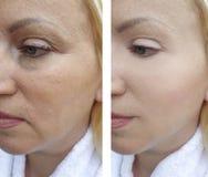 Arrugas de la mujer antes y después de tratamientos de los resultados del contraste de la corrección del efecto fotografía de archivo libre de regalías
