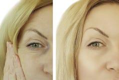 Arrugas de la mujer de la cara antes y después Fotos de archivo libres de regalías
