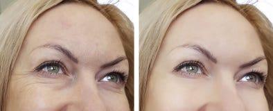 Arrugas de la mujer de la cara antes y después fotografía de archivo