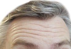 Arrugas de los hombres de la frente, grises imagen de archivo libre de regalías