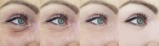 Arrugas de los ojos de la mujer antes y despu?s, collage imagenes de archivo