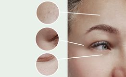 Arrugas de los ojos de la mujer que hinchan contraste del concepto de la terapia de la corrección de la diferencia del efecto ant fotos de archivo