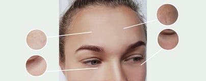 Arrugas de los ojos de la mujer que hinchan contraste de la terapia antes y después del collage de los procedimientos fotos de archivo