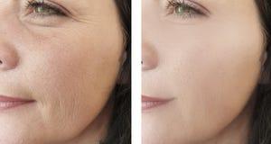 Arrugas del elderlyface de la mujer antes después del tratamiento antienvejecedor de elevación de la regeneración del biorevitali fotografía de archivo libre de regalías