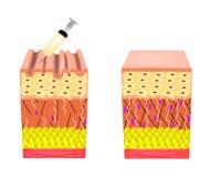 Arrugas en la piel Tratamiento de la arruga de Botox Estructura anatómica de la piel Inyecci?n de Botox Infograf?a Vector stock de ilustración