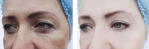 Arrugas femeninas antes y después de los procedimientos, pigmentación del retiro del hinchazón de la dermatología imagenes de archivo