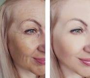 Arrugas femeninas de la belleza del ojo antes y después de tratamientos antienvejecedores de la regeneración de la dermatología fotografía de archivo