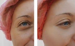 Arrugas femeninas del ojo antes y después de tratamientos de la regeneración fotografía de archivo