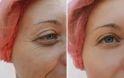 Arrugas femeninas del ojo antes y después de tratamientos de la regeneración de la corrección fotos de archivo