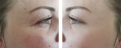 Arrugas maduras de la regeneración del resultado del retiro de la mujer de la cara que levantan antes y después de procedimientos fotografía de archivo libre de regalías