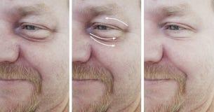 Arrugas masculinas de la cara antes y después de procedimientos de la regeneración n del correctio fotos de archivo libres de regalías