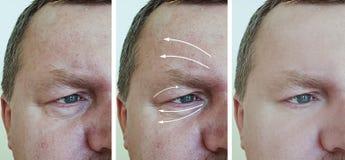 Arrugas masculinas de la cara antes y después de procedimientos de la regeneración n del correctio del retiro foto de archivo libre de regalías