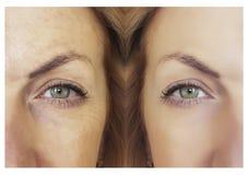 Arrugas y mujer antes y después del rejuvenecimiento de la regeneración del procedimiento fotografía de archivo