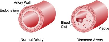 Artär med platta och blodproppen royaltyfri illustrationer