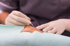Artère radiale de piqûre pour la ligne moniteur artérielle image stock