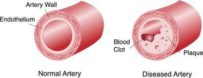 Arteria con la placa y el coágulo de sangre libre illustration