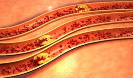 Arteria ostruita con le piastrine e la placca del colesterolo illustrazione di stock