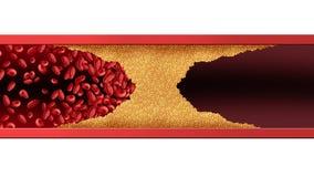 Arteria umana bloccata illustrazione vettoriale