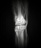 Arterias de la radiografía de la rodilla, huesos Ilustración del Vector