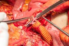 Arterias y venas del abdomen Fotos de archivo libres de regalías