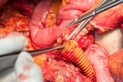 Arterias y venas del abdomen con la prótesis Fotografía de archivo libre de regalías