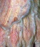 Arterie Stockfotos