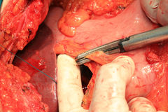 Arterie e vene addominali Fotografie Stock
