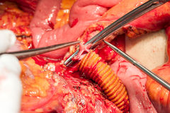 Arterie e vene dell'addome Fotografie Stock Libere da Diritti