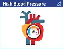 Arterieller Bluthochdruck, der Konzept überprüft Ikonen-Karikaturentwurf der Vektorillustration flacher stock abbildung