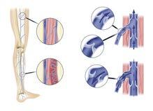 Arterien im Fahrwerkbein Stockbild
