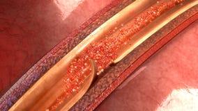 Arterien-Zerlegung lizenzfreies stockbild