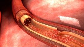 Arterii rozcięcie zdjęcia royalty free