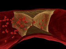 Arteriosclerasis Imágenes de archivo libres de regalías
