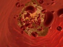 arterioskleros Arkivbild