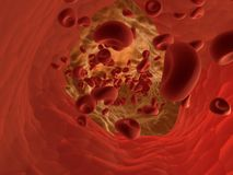 Arteriosklerose Stockfotografie