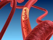 Arteriosklerosis Stock Photo