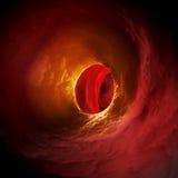 Arteriosklerosis Стоковое Изображение
