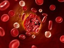 Arteriosklerosis. 3d rendered illustration of arteriosklerosis Stock Photo