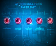 Artery anatomy and atherosclerosis. Formation, finally artery blocked by the blood clot. Abstract blue technology background Stock Photos
