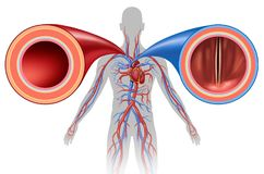 Free Artery And Vein Human Circulation Royalty Free Stock Images - 113607629